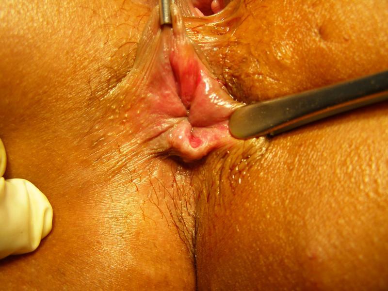 первичный сифилис ануса