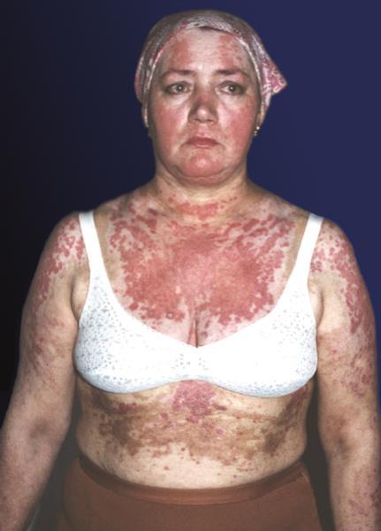 Обширные очаги многоформной экссудативной эритемы на туловище