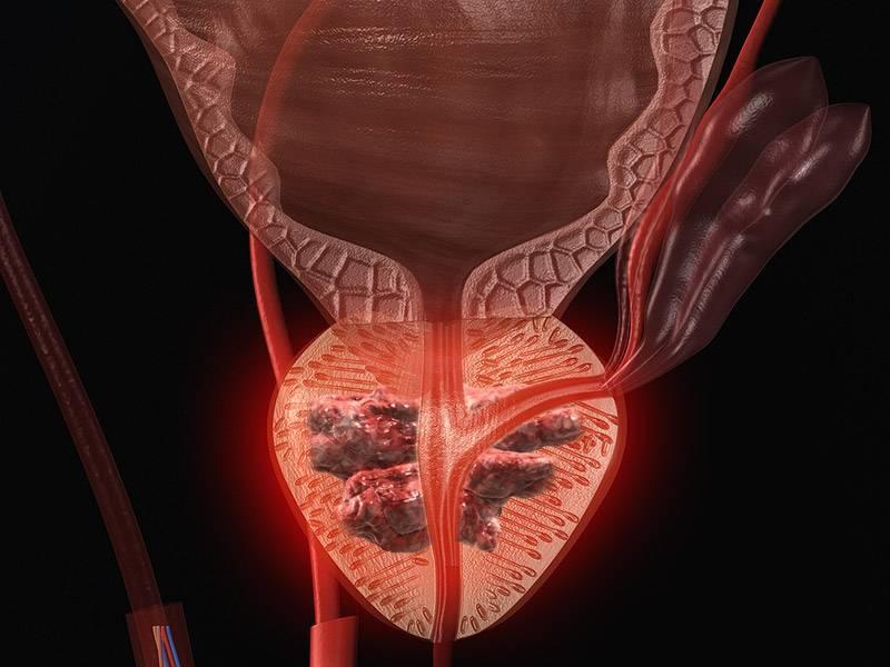 Хронический простатит рак бактериальным простатитом