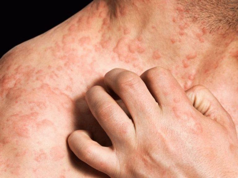 Кожную аллергию картинки