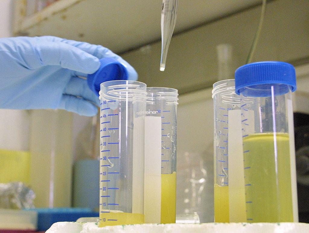 Выполнение анализов мочи в лаборатории