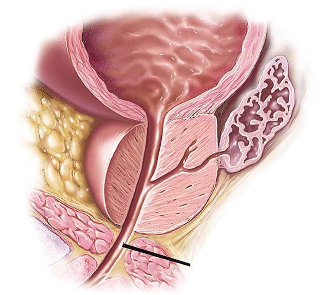 Простатит железы клацид в лечении простатита