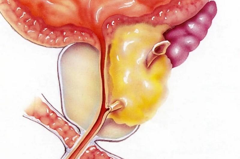 Твердая простата при хроническом простатите витамины для мужчин при хроническом простатите