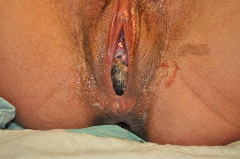 Fibroid vagina