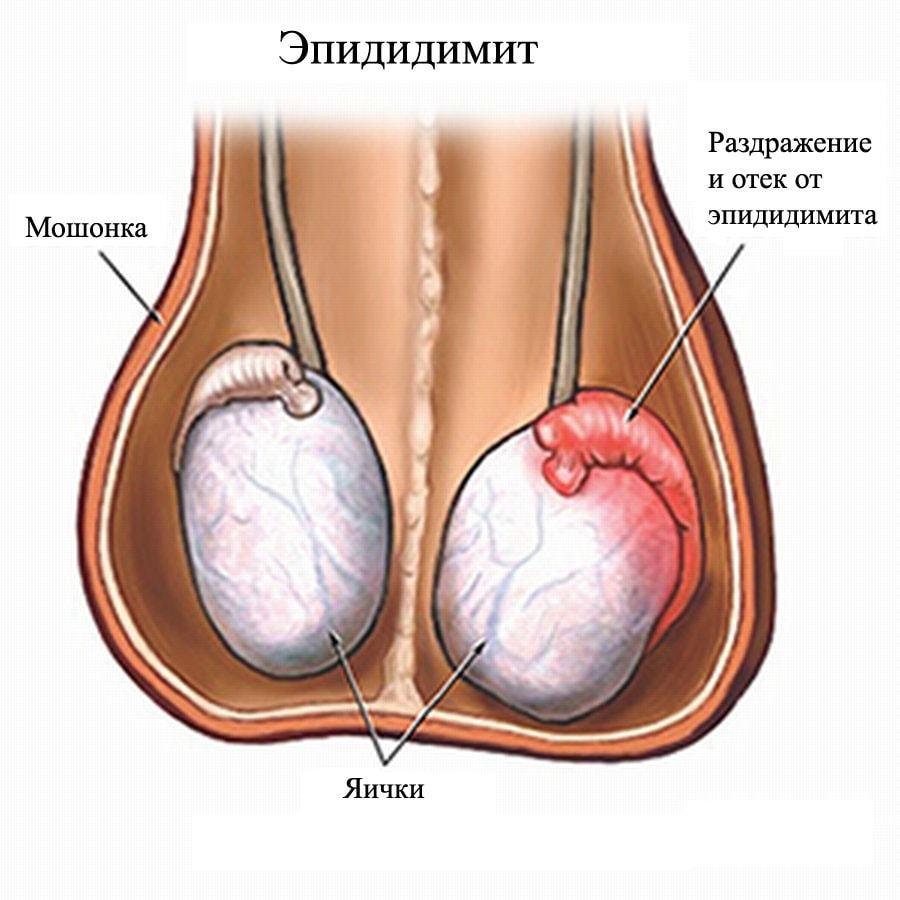 Воспаление придатка яичка - эпидидимит