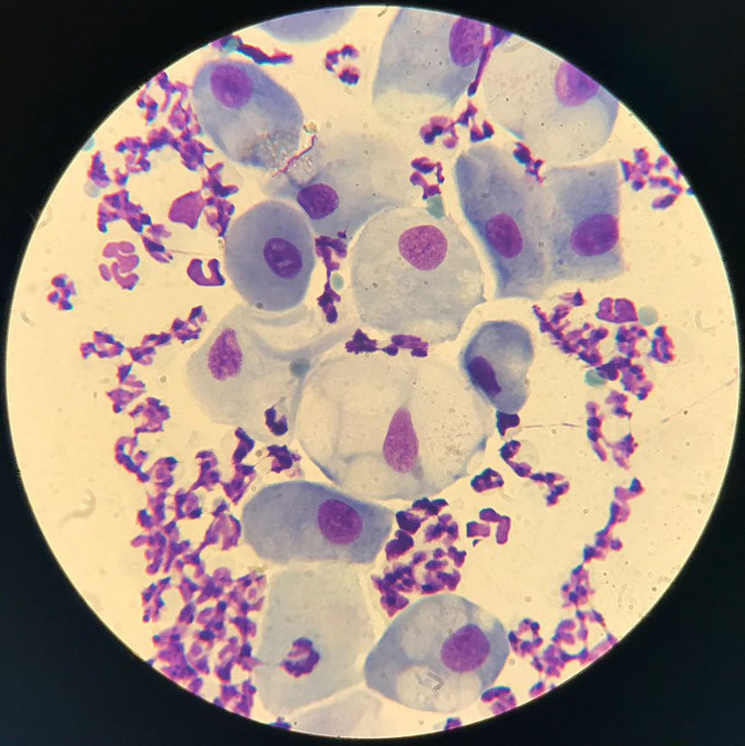 Флора влагалища в микроскопе