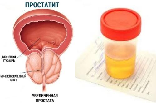 Кровь и простатит офлоксацин при простатите форум