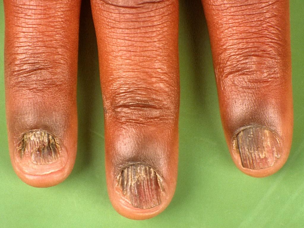 Заболевания ногтей рук картинки
