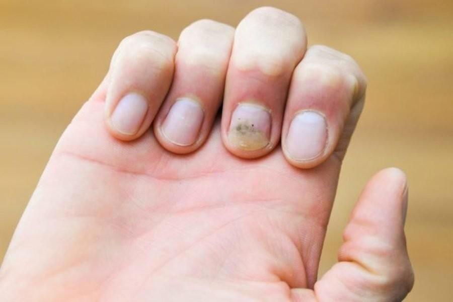 Как удалять бородавки из под ногтей thumbnail