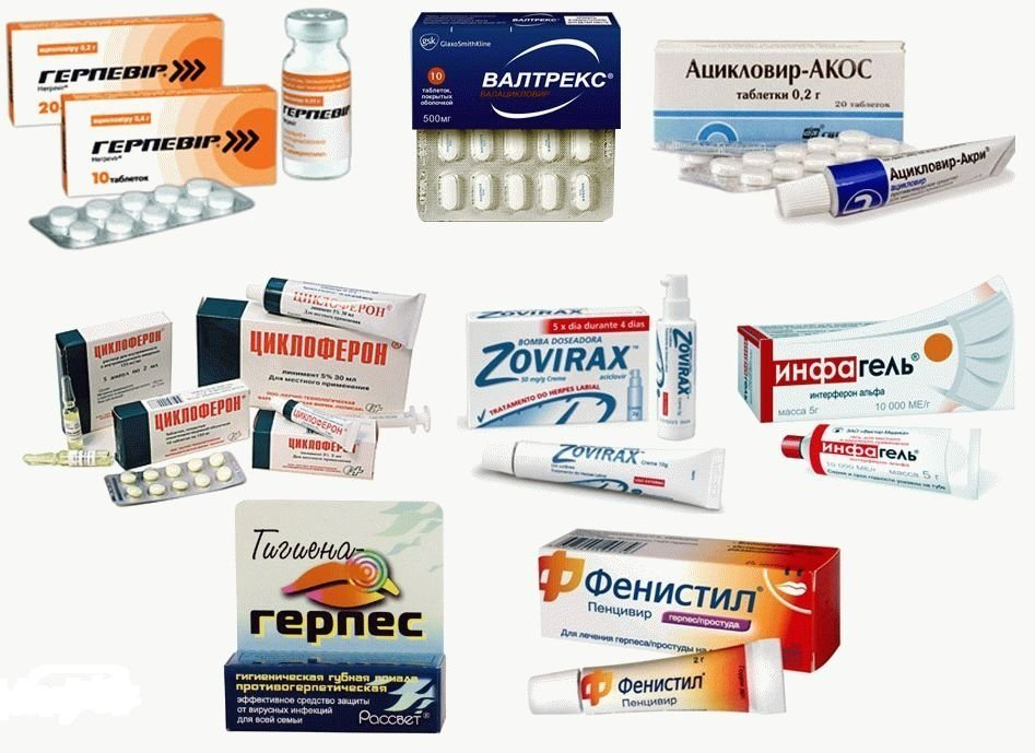 Антивирусные препараты для лечения герпеса 2 типа