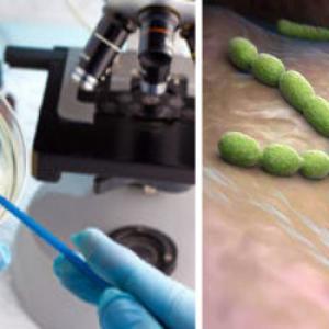 внутриклеточное паразитирование хламидии