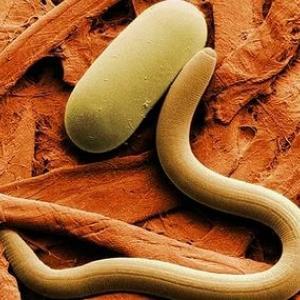 обильные выделения из влагалища могут вызываться попаданием в него: остриц (энтеробиоз),