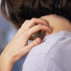 Неудержимое желание почесаться при аллергии