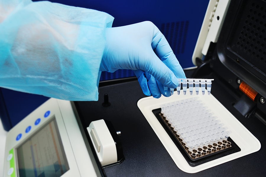 ПЦР диагностика мочи на инфекции