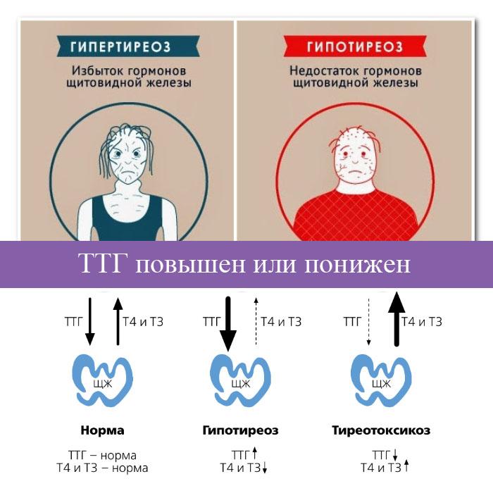 ттг гормон и лишний вес