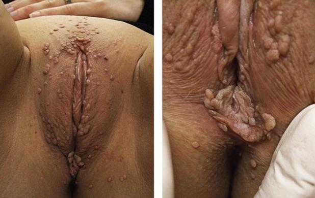 Заболевания после секса фото кожа — pic 10