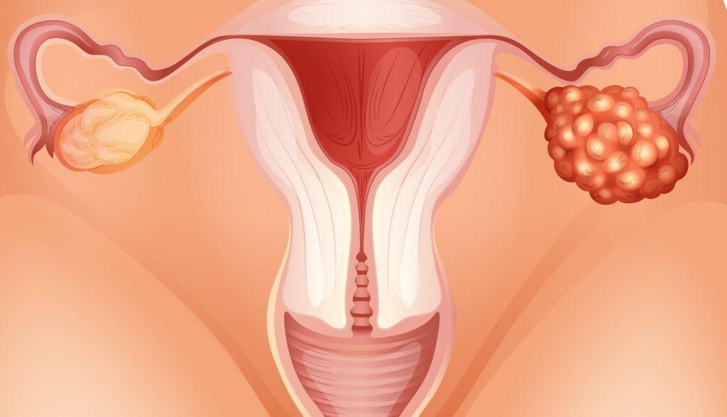 патологии яичников