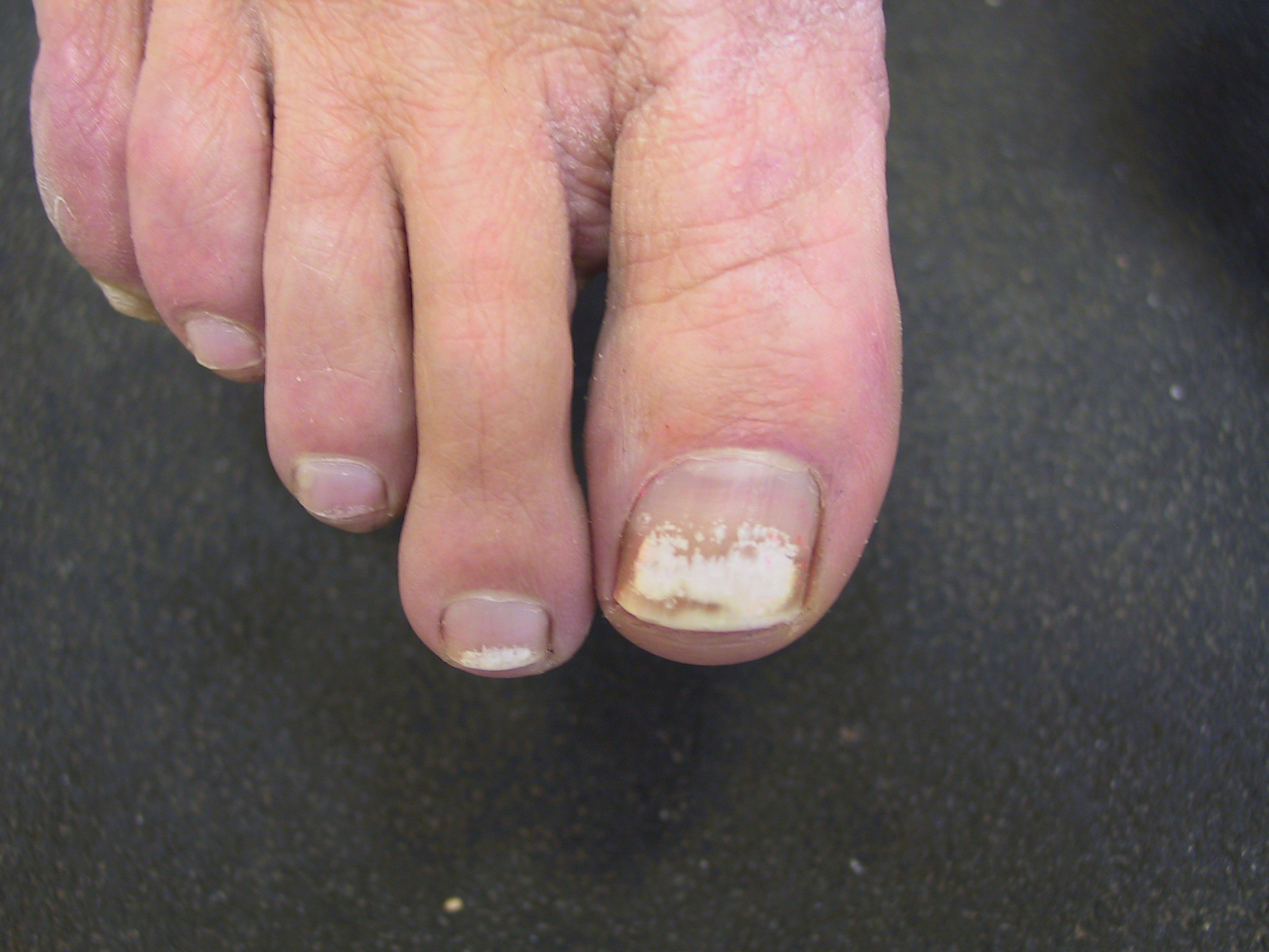 Грибок белые пятна на ногтях рук