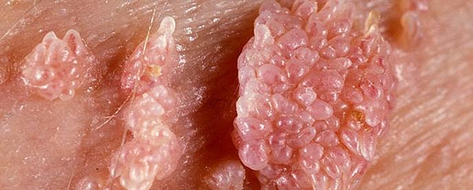 кондиломы на коже при вирусе папилломы человека