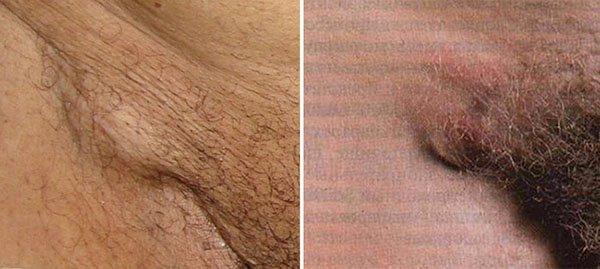 при половом герпесе увеличиваются лимфатические узлы в паху.