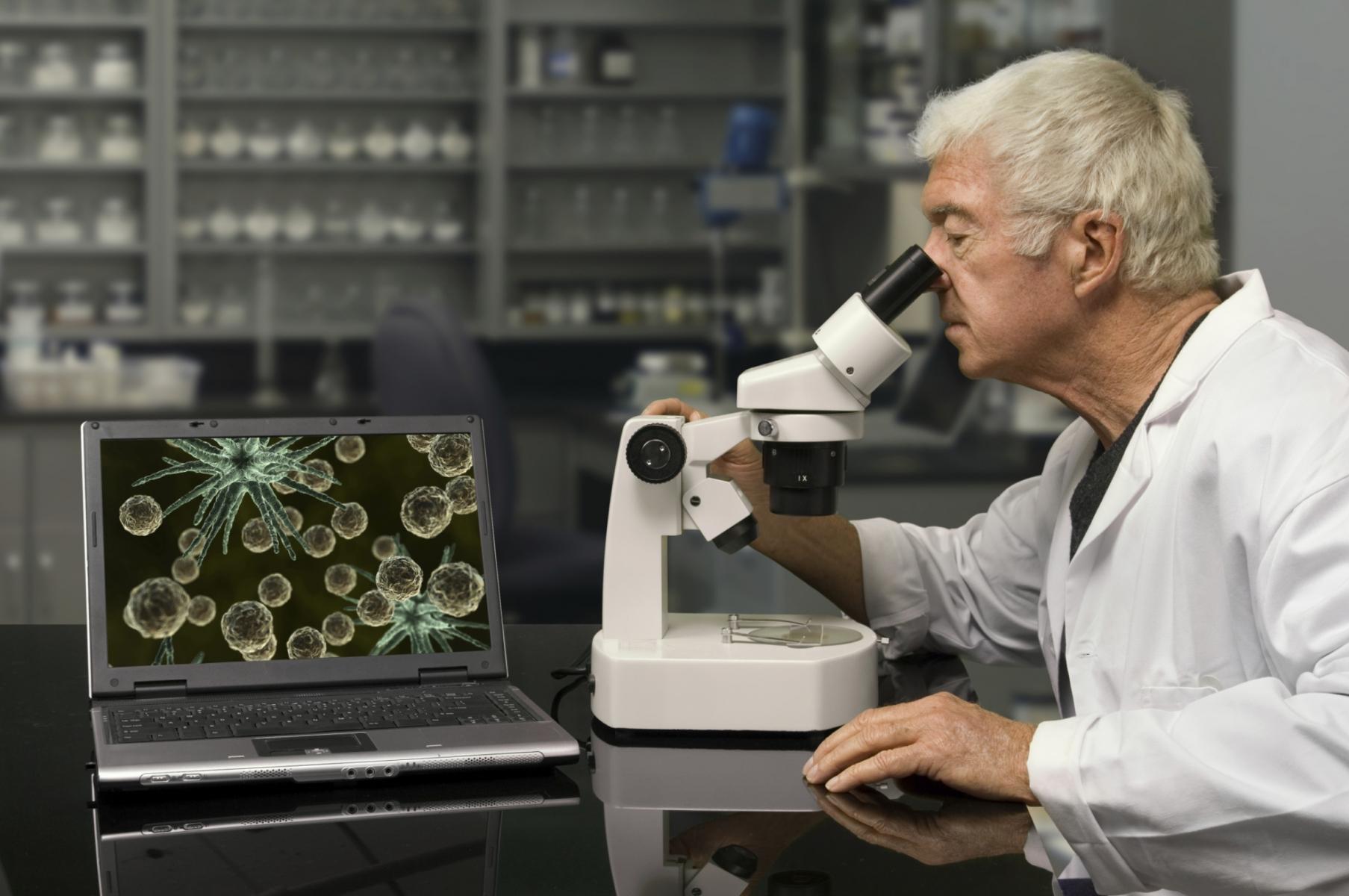 Микроскопия мазка на молочницу, взятого из влагалища или уретры