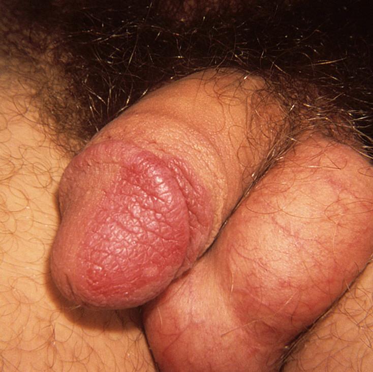 Photo of penis barley — 10