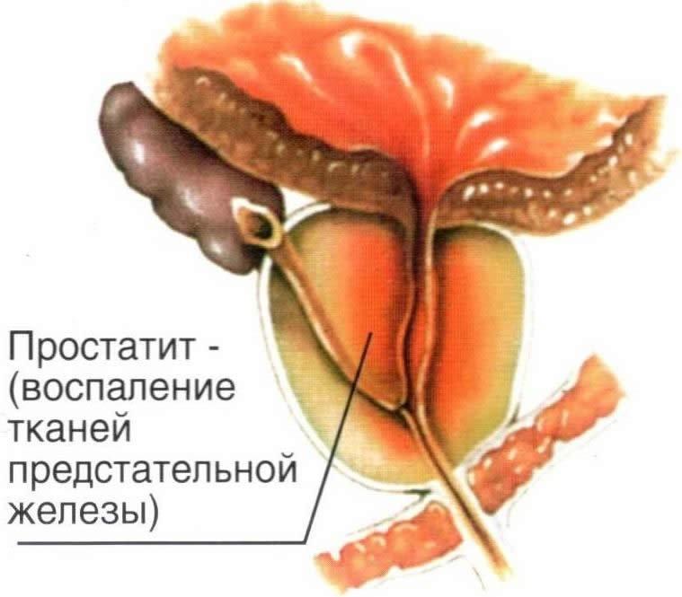 ЭХО-признаки хронического простатита.