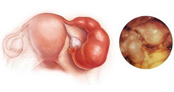 Первые признаки микоплазмоза у мужчин и женщин.