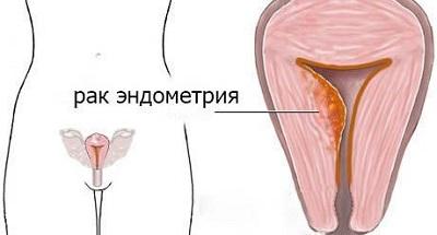 Во время секса выделяется коричневая слизь