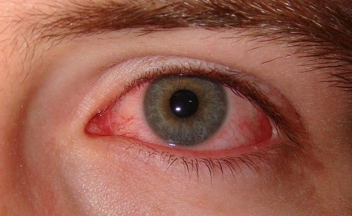 Лечение глаз при болезни рейтера медицина дайвинга