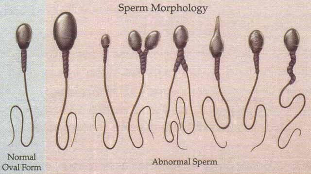 как узнать качества спермы-су2