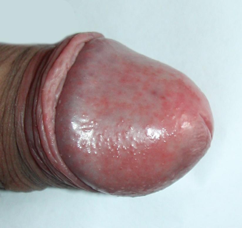 Аллергические высыпания на половом члене