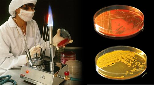 Дисбактериоз кожи головки и крайней плоти