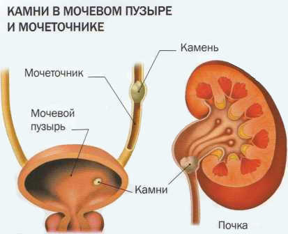 Задержка мочи в мочевом пузыре могут возникать из-за закупорки камнем выхода из мочевого пузыря