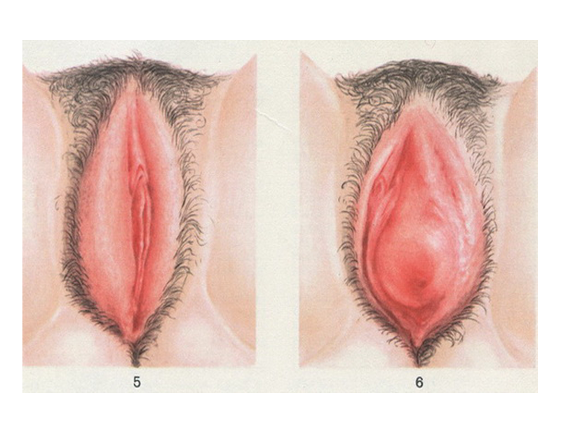 Боль половых губ при сексе