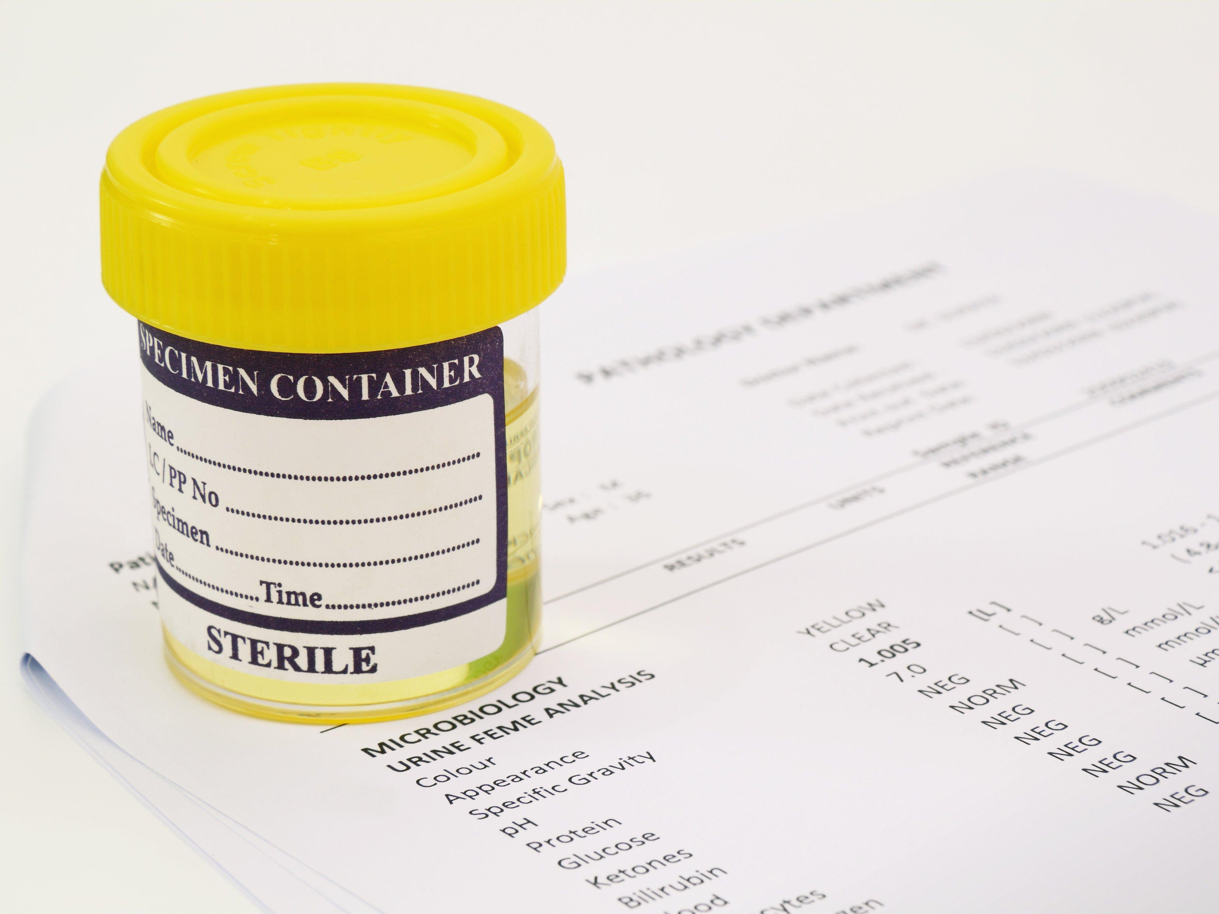 Анализ мочи по Нечипоренко – дается для подтверждения или опровержения воспалительного процесса мочевыводящих путей.