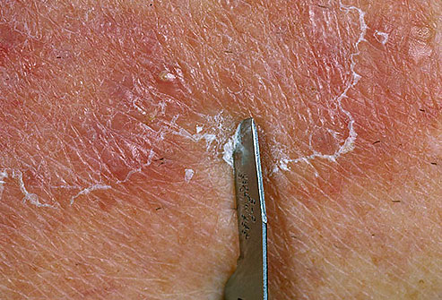 соскоб у дерматолога
