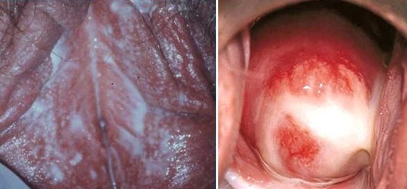 первые признаки наличия паразитов в организме человека