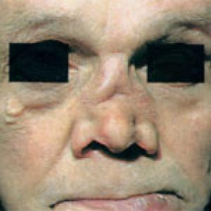 седловидный нос