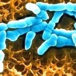 Гарднереллез – заболевание инфекционно-воспалительной природы, вызываемое бактериальным микроорганизмом Gardnerella vaginalis.