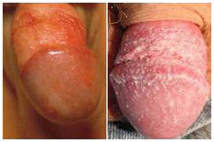 Опрелости в паху у мужчин лечение и причины фото