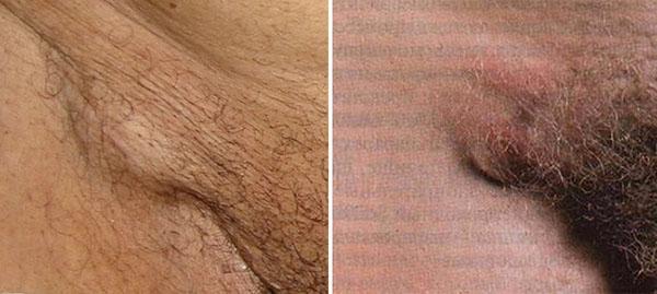 воспаление лимфоузлов в паху у женщин причины фото