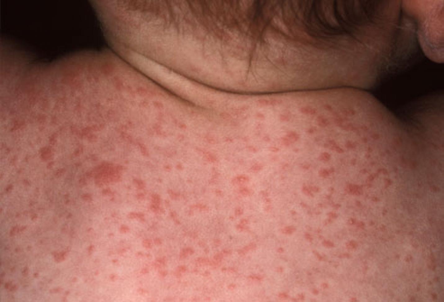 Первые признаки сифилиса 2 фотография