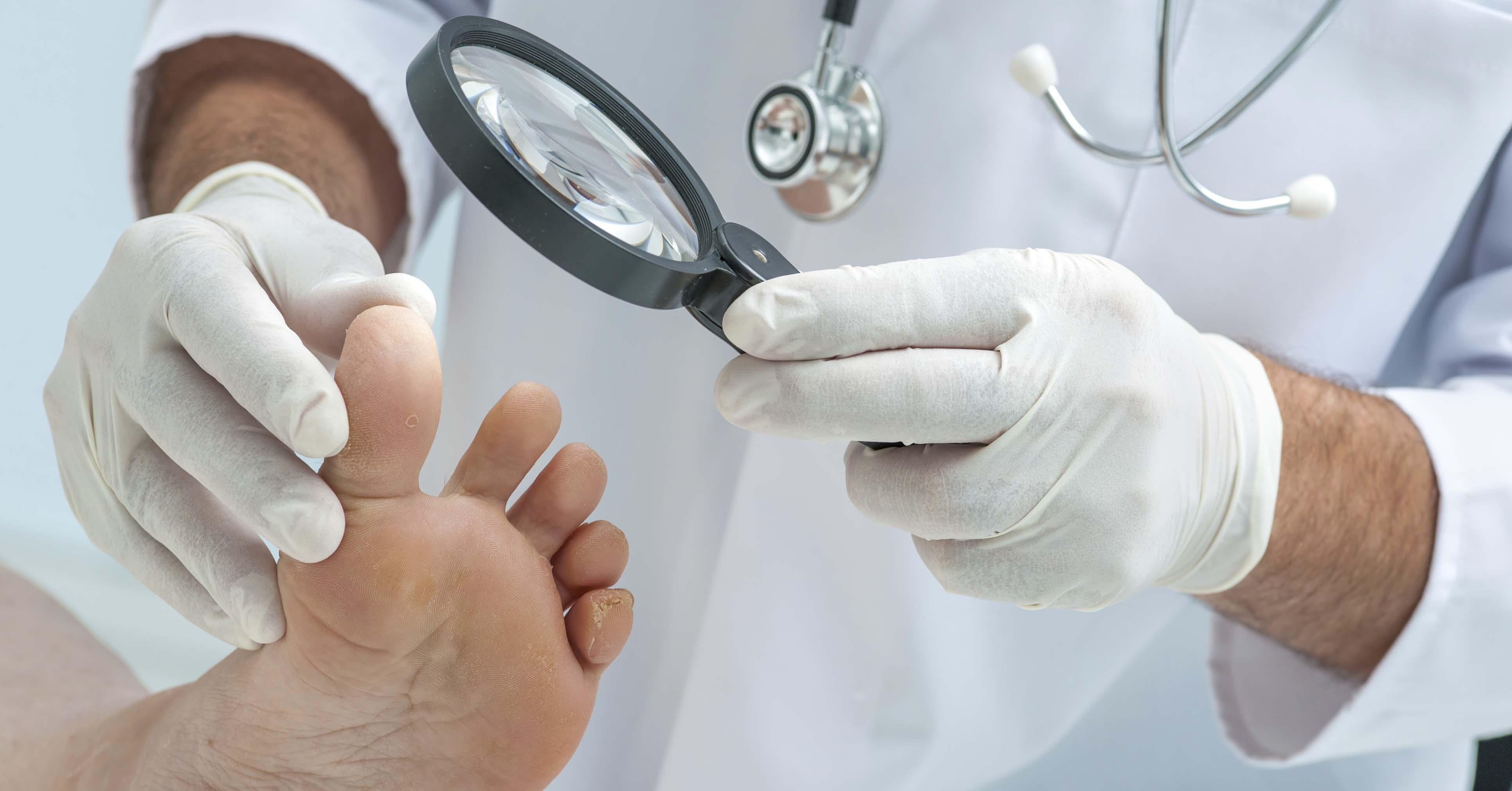 Вросший ноготь лечение после операции