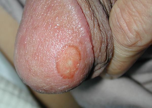 сифилитическая язва на головке члена