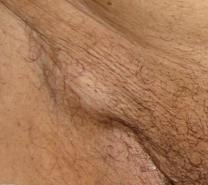 увеличение лимфоузлов в паховой области