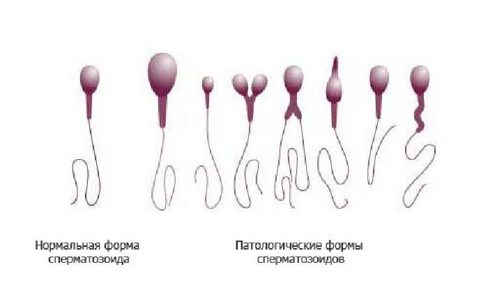 spermatogenez-podvizhnost-spermatozoidov