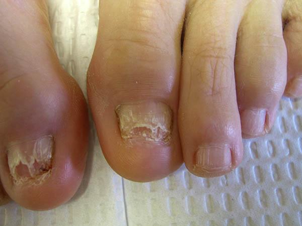 Виды ногтевого грибка фото и их лечение