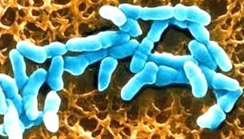 vosstanovit-biotsenoz-vlagalisha