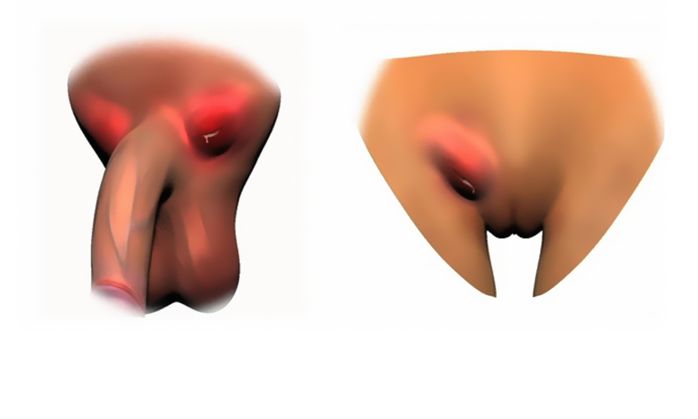 Анальный секс при грибковом заболевания